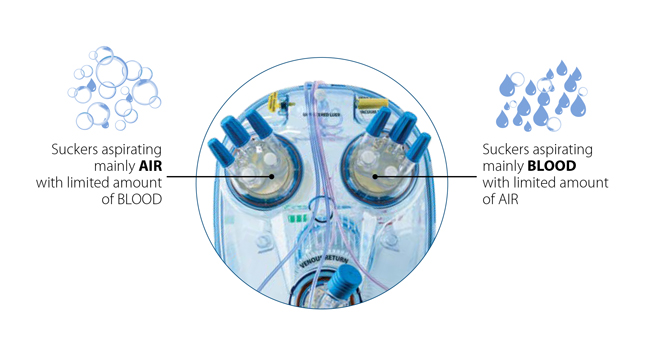 Eurosets Single chamber AF oxygenator